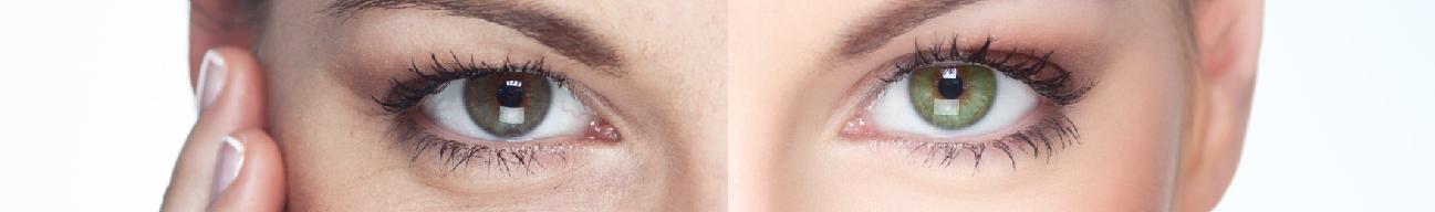 pigmentacija